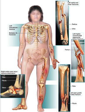 Left Arm, Left Leg and Right Foot Fractures