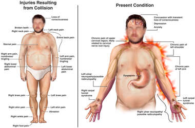 Male Figure with Injuries and Symptoms and a Torso View with Radiculopathy to the Left Arm and Hand