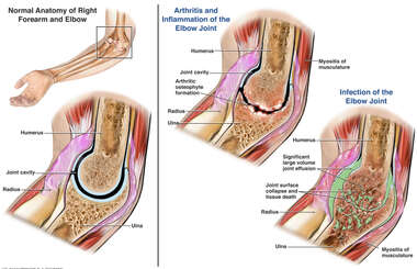 Inflamed and Arthritic Elbow Joint vs. Infection of Elbow Joint