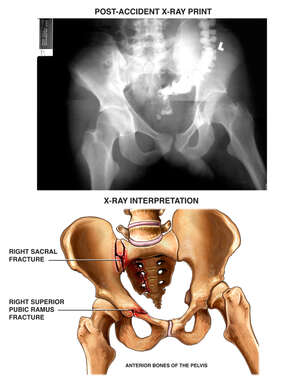 Post-accident Film and Fractures of the Pelvis and Sacrum