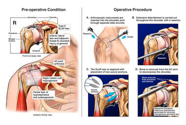 Right Shoulder Injury with Arthroscopic Surgical Repairs