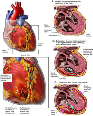 Ventricle Lacerations with Cardiac Tamponade