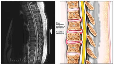 Spinal MRI- Thoracic, Sagittal View