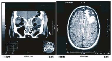 Radiological Evidence of Brain Injury