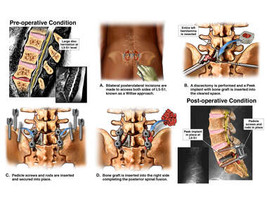 L5-S1 Traumatic Disk Herniation with Decompression and Fusion with Instrumentation