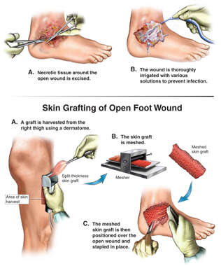 Debridement and Irrigation of Foot Wound