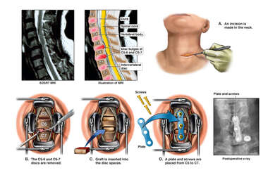 Cervical Disc Injuries with Double Level Anterior Diskectomy and Fusion