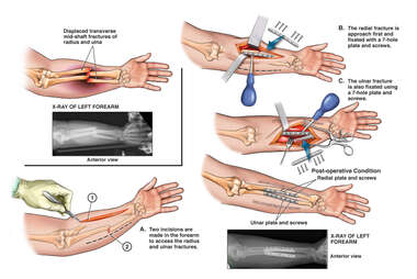 Left Forearm Fractures with Surgical Fixation