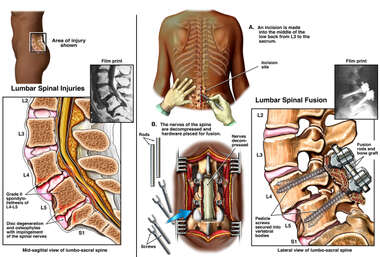 Lower Back Pain - L4-5, L5-S1 Disc Degeneration with Spinal Fusion Surgery