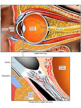 Subconjunctival Sub-Tenons Injection