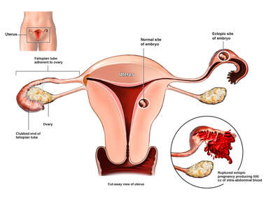 Ruptured Ectopic Pregnancy