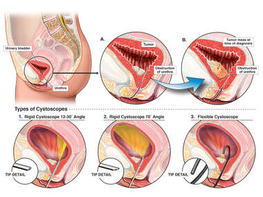 Bladder Outlet Obstruction and Cystoscopy