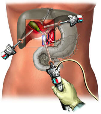 Laparoscopic Cholecystectomy Instrumentation
