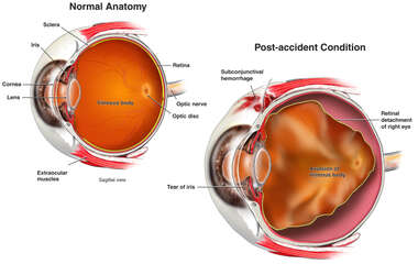 Post-accident Retinal Detachment of the Right Eye