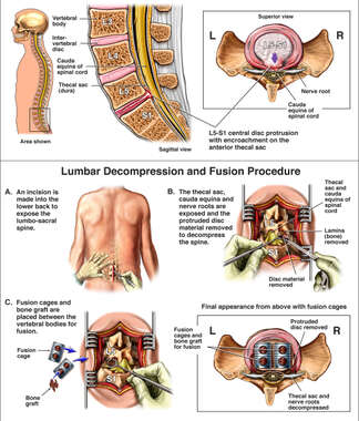 Lumbar Spine Injury - L5-S1 Disc Herniation with Posterior Spinal Fusion Surgery