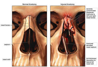 Fractures of Nasal Bones and Septum