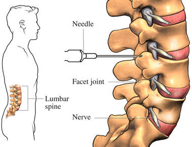 Facet Joint Nerve Block