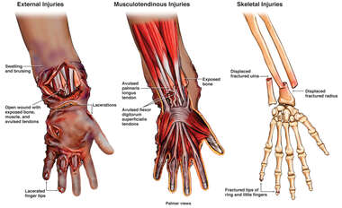 Laceration, Avulsion, Degloving Injuries to the Left Forearm, Wrist, and Hand