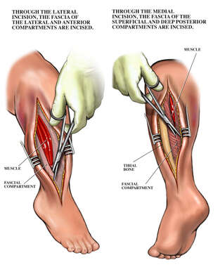 Compartment Syndrome of the Right Leg