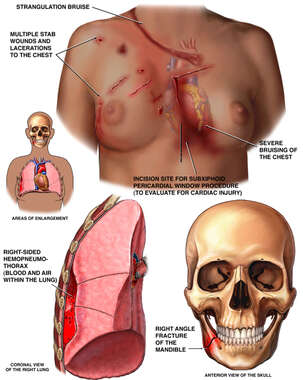 Black Female Torso with Injuries to the Jaw, Chest, and Lung