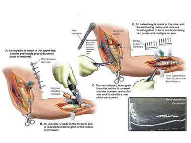Revision of Internal Fixation of Humerus and  Creation of a One-bone Forearm