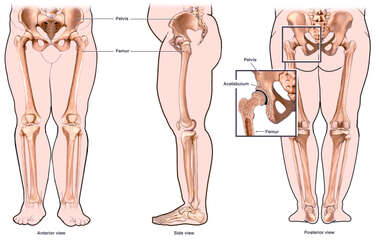 Anatomy of the Hip Joint - Obese Person