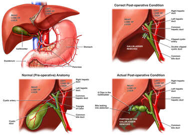 Incomplete Cholecystectomy Pre-Operative and Post-Operative Conditions