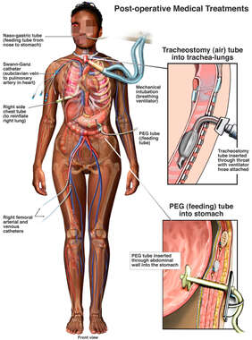 Post-operative Medical Treatments