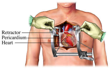 Coronary Artery Bypass Graft: exposure