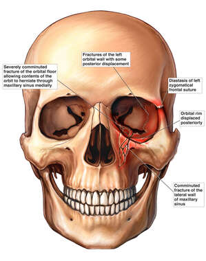 Skull with Oribital, Zygomatic and Maxillary Facial Fractures