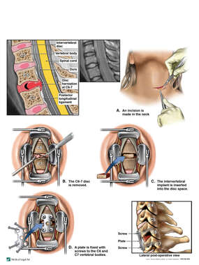 Cervical Disc Herniation with Anterior Discectomy and Fusion Surgery