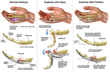 Anatomy of the Hand: Pre and Post Injury