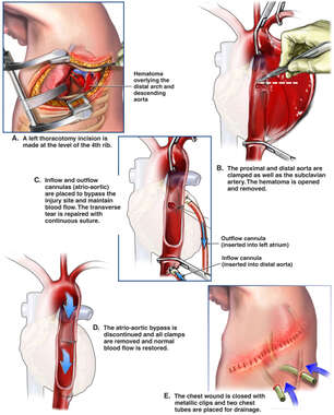 Surgical Thoracotomy Repair of the Thoracic Aorta