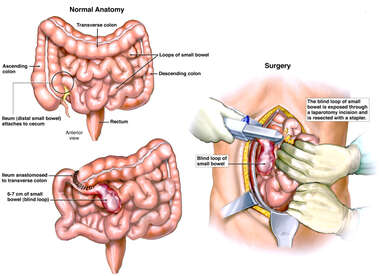 Blind Loop Syndrome and Surgical Bowel Resection