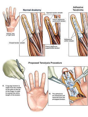 Extensive Adhesive Tendinitis with Proposed Surgical Tenolysis