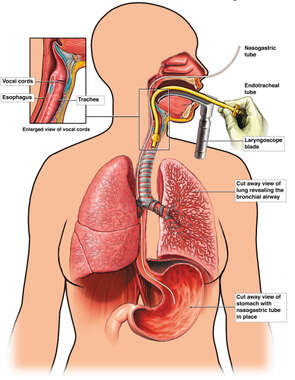 Placement of Endotracheal Tube and Nasogastric Tube