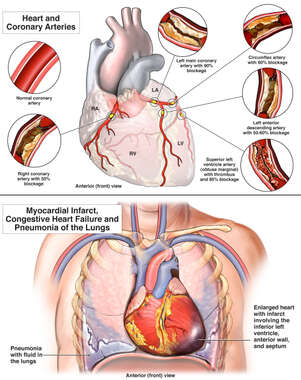 Failure to Diagnose Coronary Artery Disease