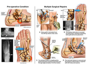 Left Foot Injuries with Surgical Repairs