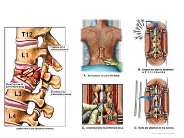 Lumbar Spine Injuries with Surgical Fixation