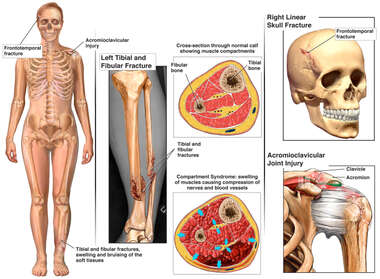 Female Figure with Left Lower Leg Fracture, Compartment Syndrome, Skull Fracture and Shoulder Injury