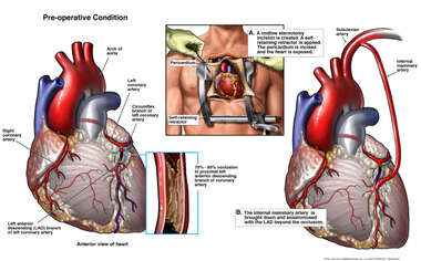 Coronary Artery Disease with Single Coronary Artery Bypass Procedure