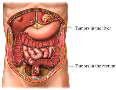 Colon Cancer with Metastesis to the Liver