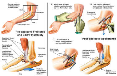 Right Elbow Injury with Subsequent Surgical Fixation