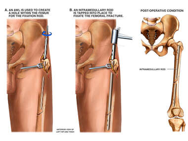 Surgical Fixation of Fractured Femur