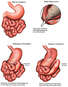 Complications from Massive Stomach Tumor