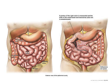 Severe Abdominal Adhesions with Surgical Lysis and Right Colon Resection