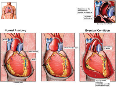 Heart Condition - Cardiac Tamponade