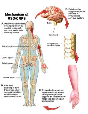 Mechanism of RSD/CRPS