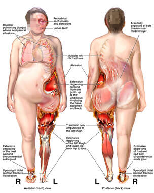 Front and Back Female Figure with Severe Degloving Wounds to the Left leg and Flank