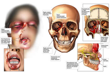 Post-traumatic Facial Injuries